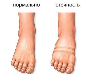 почечный отек ног