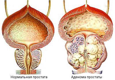 Предстательная железа в фиброзах
