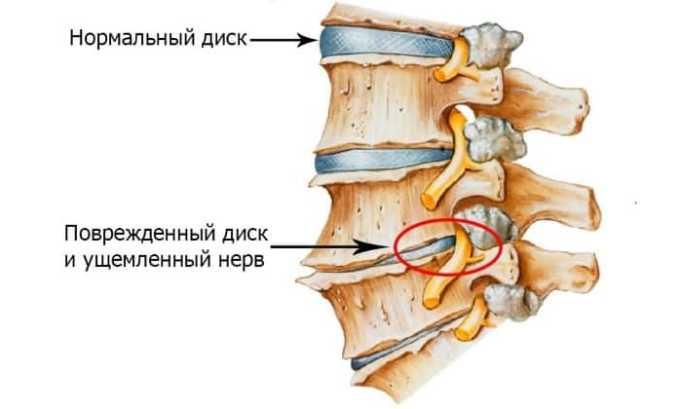 Снимает болезненные ощущения в области спины при дегенеративных/воспалительных болезнях, поражениях позвоночного столба