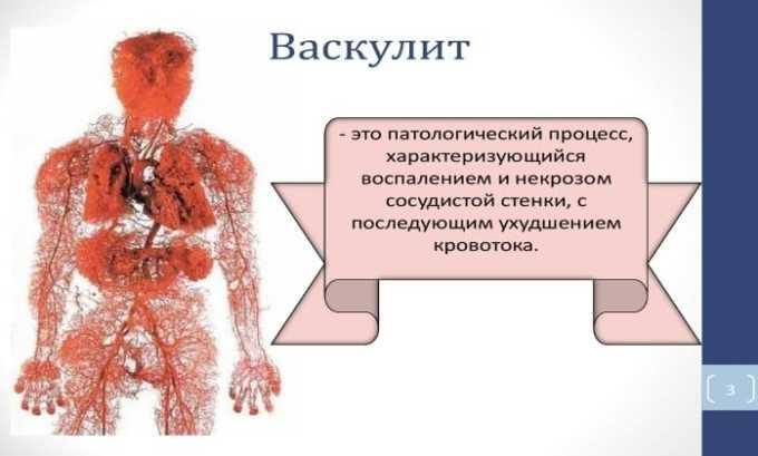 При неправильном дозировании или режиме приема антибиотика возможны проявления-васкулита
