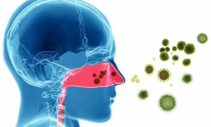 Препарат назначают при инфекционных поражениях ЛОР - органов