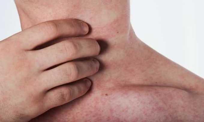 Прием препарата может спровоцировать появление сыпи и зуда