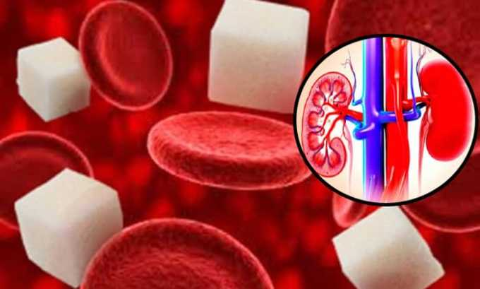 Медикамент Каптоприл помогает при заболевании почек на фоне сахарного диабета 1 типа