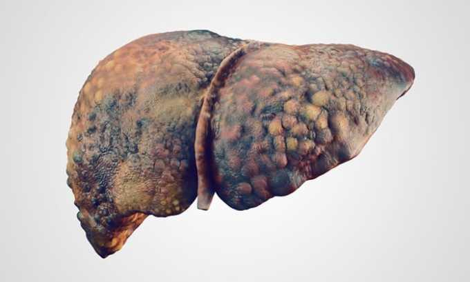 При ухудшении печеночных проб дозировку снижают до минимально эффективной или же отменяют медпрепарат