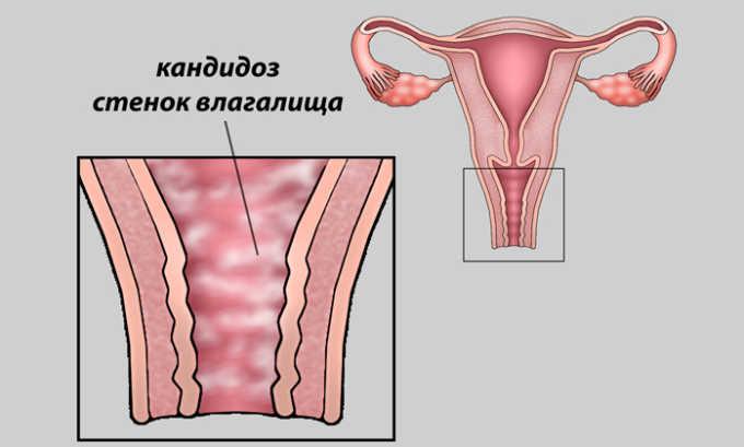 Препарат может спровоцировать кандидозный вагинит