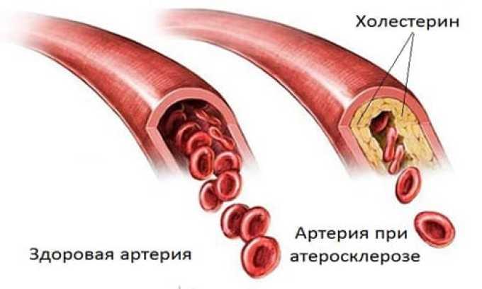 Терапия экстрактом полевого артишока в комплексе с другими лекарствами показана при атеросклеротическом поражении сосудов