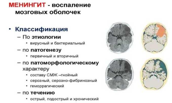 Антибиотик назначается для терапии бактериального менингита