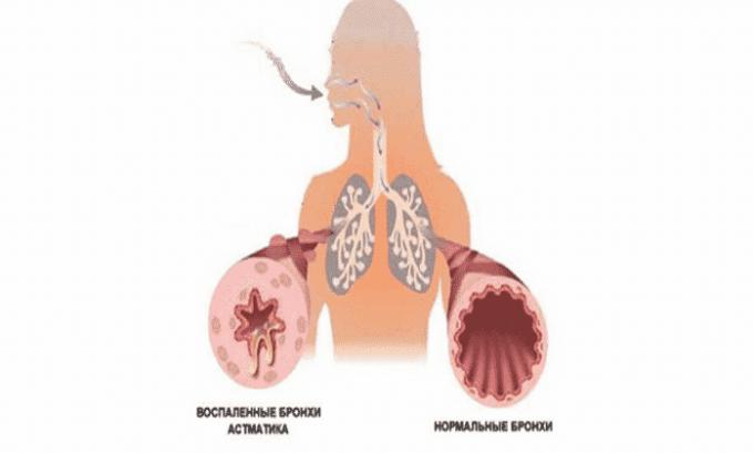 От приема препарата могут появиться побочное явление в виде бронхиальной астмы