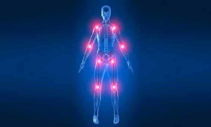 Боль, воспаление в суставах - показание к применению препарата Нимедар
