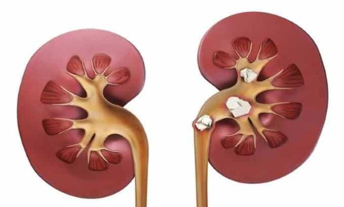Препарат применяется для профилактики болей и функциональных нарушений, спровоцированных гладко-мышечными спазмами, включая нефролитиаз