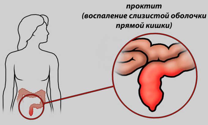 Проктит поможет вылечить Ибупрофен