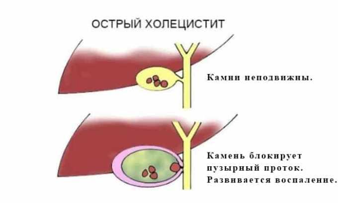 Препарат используется при холецистите