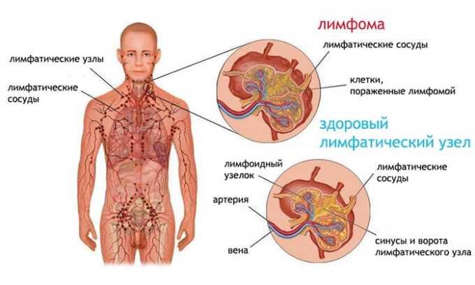 Лечение средством будет обоснованным при выявлении у человека лимфомы