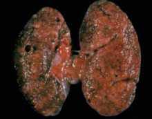 Гломерулонефрит — классификация болезни