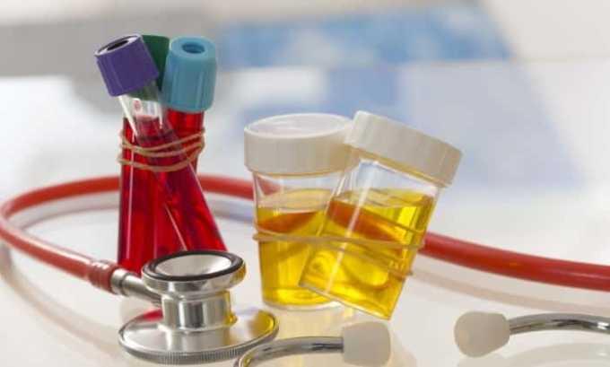 При обследовании сдают общий и биохимический анализы крови