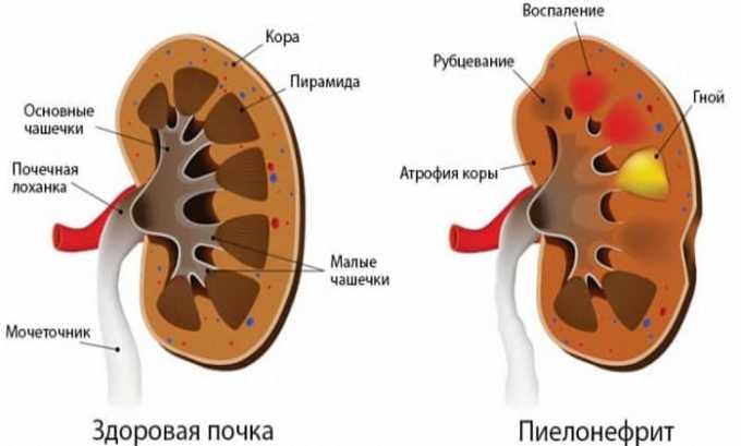 Препарат применяют при заболеваниях мочевыводящих путей и воспалительные процессы в тканях почек