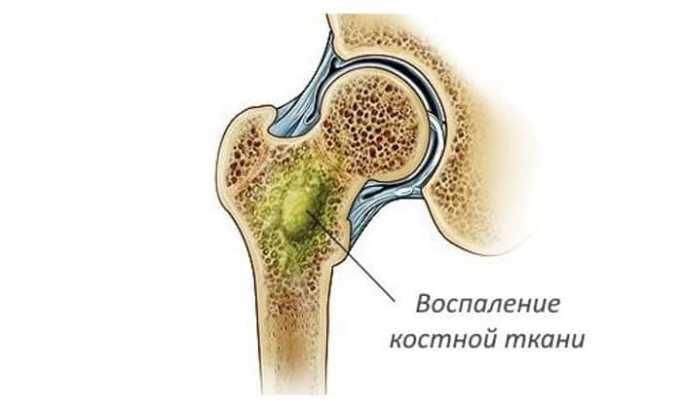 Лечение препаратом проводится при инфицировании суставных, костных и мягких тканей