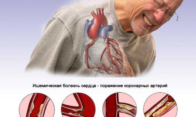 Препарат противопоказан при ишемической болезни сердца