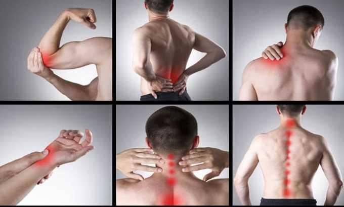 Нурофен используется при мышечных болях