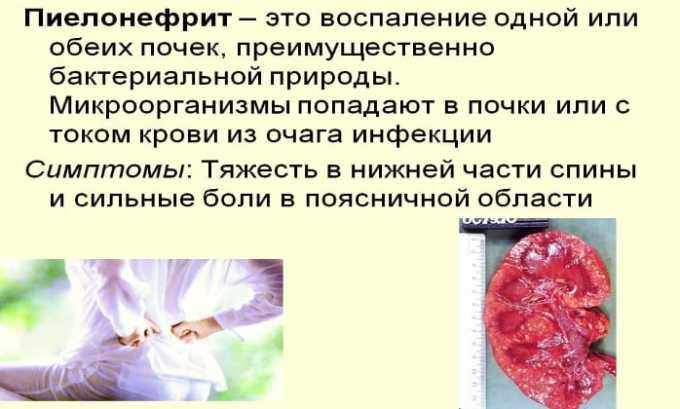 Препарат назначают при пиелонефрите