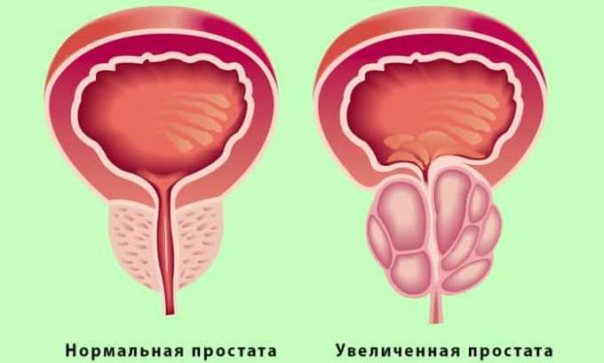 Ослабление иммунитета и активизация вируса происходит при развитии простатита у мужчин