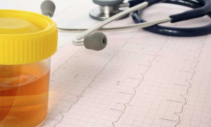 У женщин, страдающих мочекаменной болезнью и хроническим циститом, появляется кровь в урине