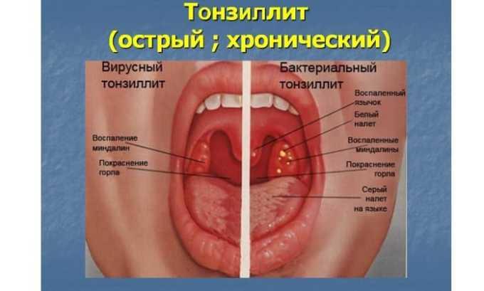 Альцизон показан при тонзиллите