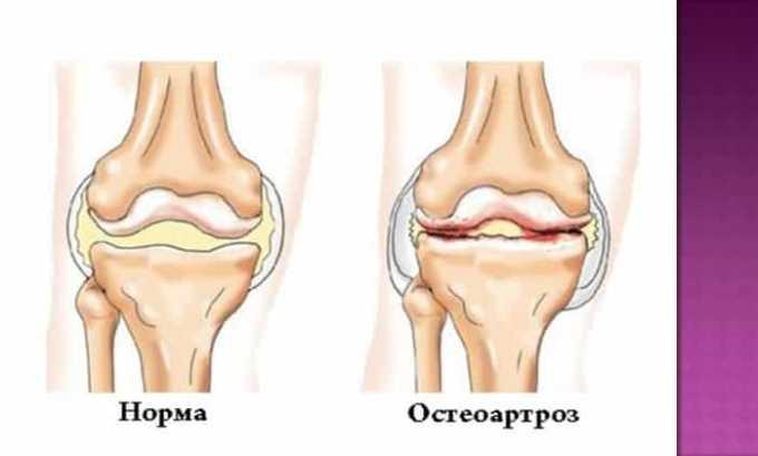 Таблетки назначают при остеоартрозе