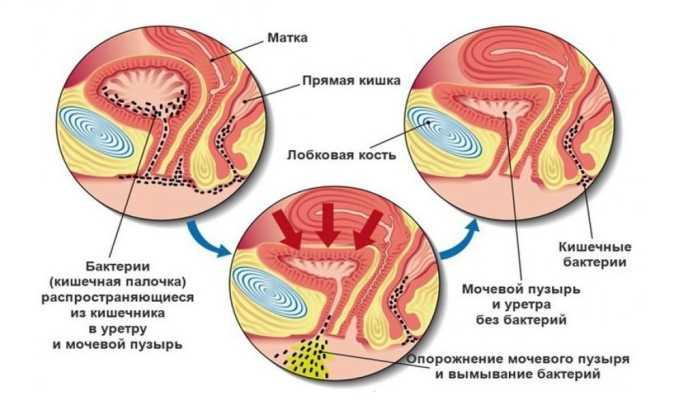 Уретра, влагалище и анальное отверстие у девочек расположены в непосредственной близости, поэтому велик риск инфицирования мочеполовой системы бактериями, находящимися в кишечнике