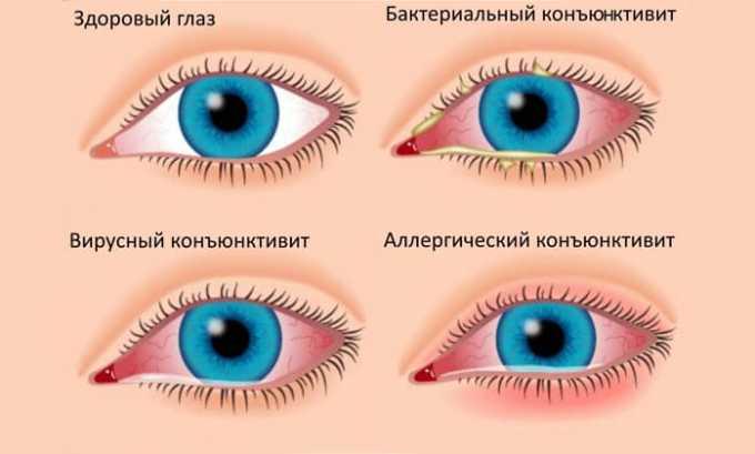 При болезнях глаз можно назначить Нормакс