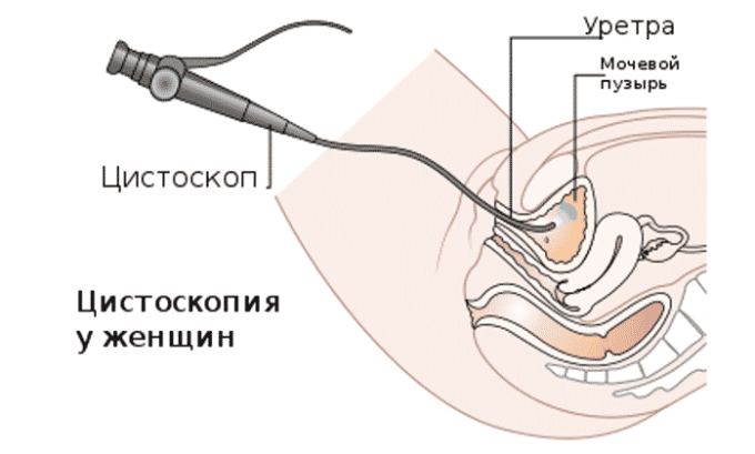 Цистоскопический осмотр слизистых мочевого пузыря - процедура, помогающая обнаружить кисты при цистите