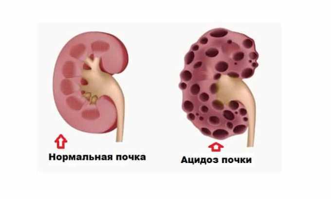 Оксидевит назначают при ацидозе почек