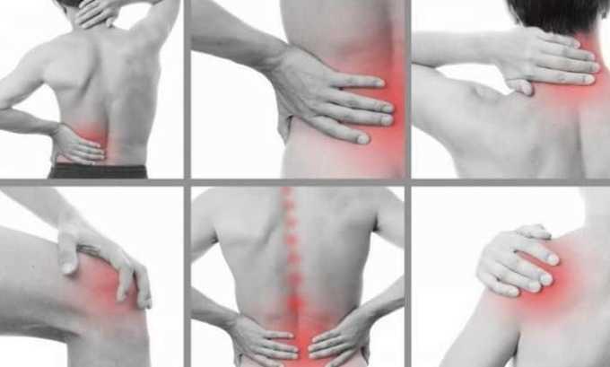 Препарат применяют при воспалении сухожилий, мышц, связок травматического происхождения