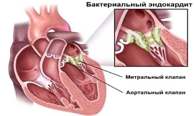 Лечение препаратом проводится при эндокардите