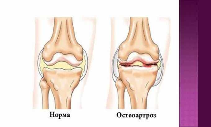 Диклофенак мазь помогает от остеоартроза