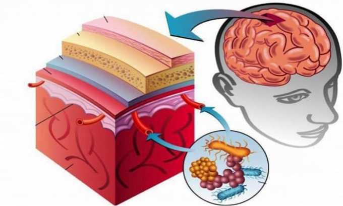 Лечение препаратом при менингите бактериального происхождения