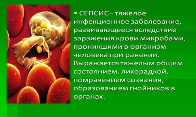 Препарат применяется при сепсисе
