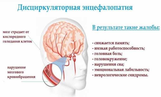 Глицин Био более эффективен при энцефалопатии