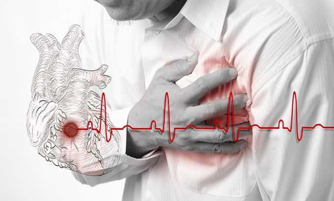Наклофен Дуо запрещено принимать при сердечной недостаточности в декомпенсированной форме
