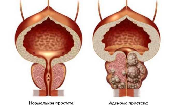 В перечень наиболее распространенных патологий у мужчин, лечением которых занимается врач-уролог, входит аденома простаты