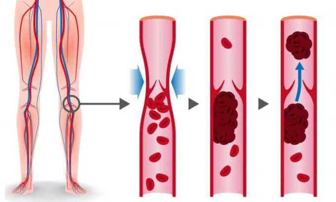 Тромбообразование - один из побочных эффектов после приема препарата