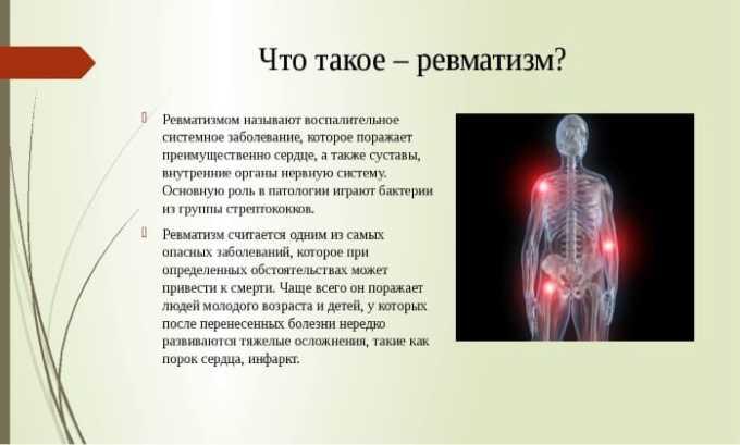 Лекарство назначают при различных формах ревматизма
