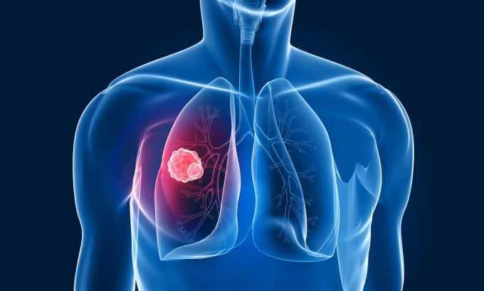 Туберкулез - причина хронического цистита у женщин