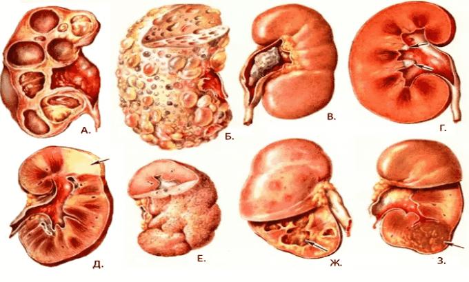 Лекарственное средство назначается при инфекционных почечных патологиях