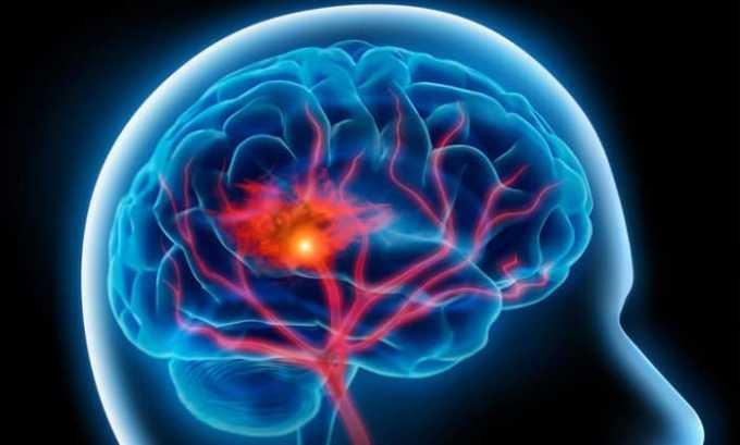Острое нарушение мозгового кровообращения при атеросклерозе и спазме артерий головного мозга - одно из показаний к применению препарата