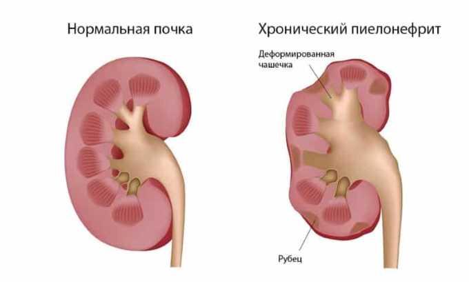 Немисулид противопоказан при нефритах и пиелонефритах