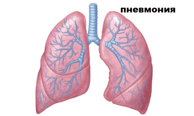 Кортеф назначают при пневмонии