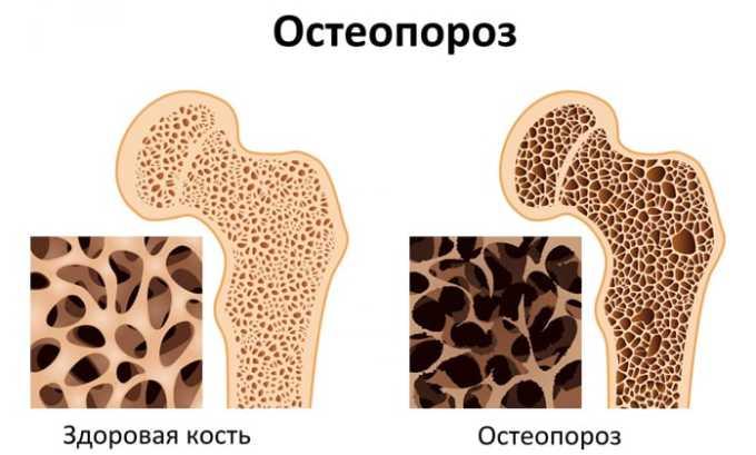 Кеналог противопоказан при остеопорозе