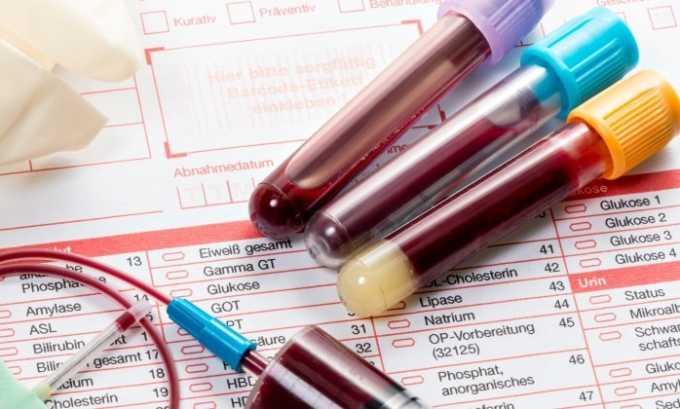 Анализ крови способствует выявлению внутренних кровотечений и обезвоживания