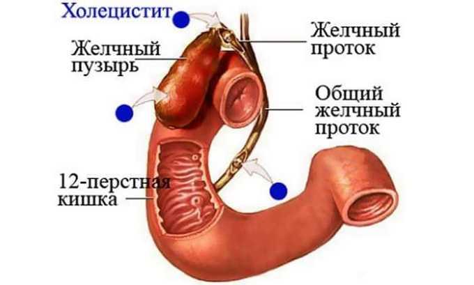 Прием препарата показан при холецистите